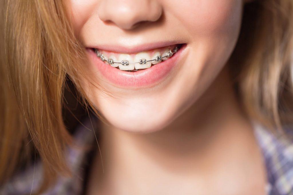 where are medford braces?