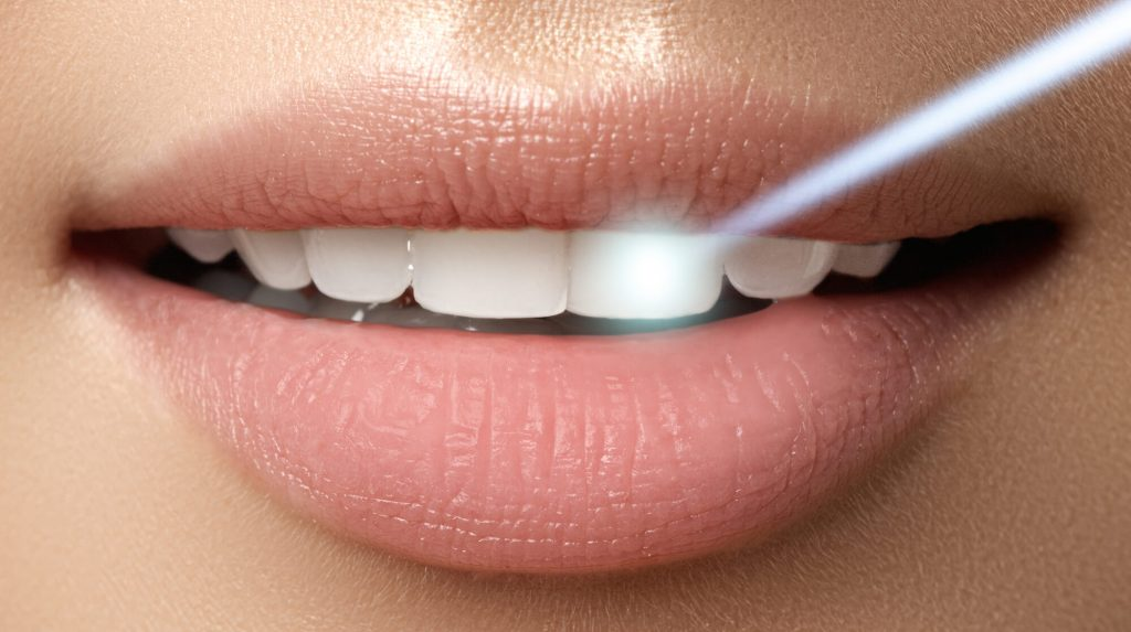 who offers the best laser dentistry park falls?